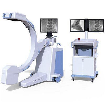 High Frequency Mobile Digital C-arm System